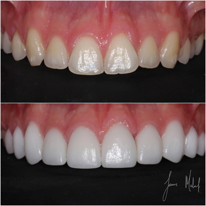 Porcelain Veneers Case Study - ARki -img6